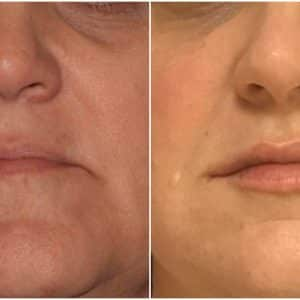 Before and after image of injectable services from The Skin Wellness Center in Knoxville TN